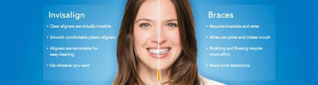 Best Dentist in Brampton, Braces, Brampton Dental Offices, Brampton Family Dentist, Dentist Brampton, Invisalign, Invisalign Braces, Straight Teeth,