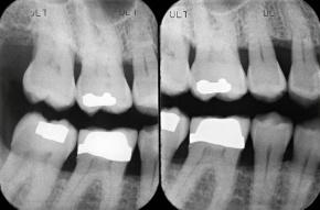 Dentist Brampton, Dental x-Rays,