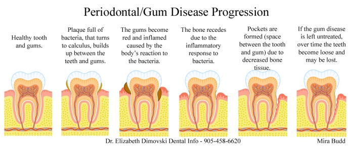 Gum Disease, Periodontist Brampton, Implant and Gum Specialist,