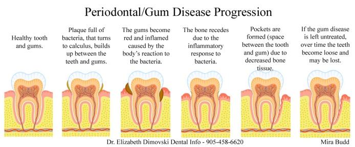 Gum Disease, Periodontist Brampton, Implant and Gum Specialist,