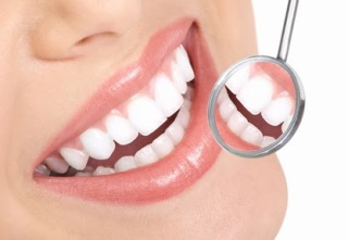 Brampton Dentists, Brampton Dental offices, Fluorosis,