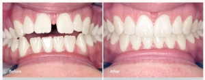 Invisalign, Brampton, Dentists, Orthodontist in Brampton, Family Dentist,