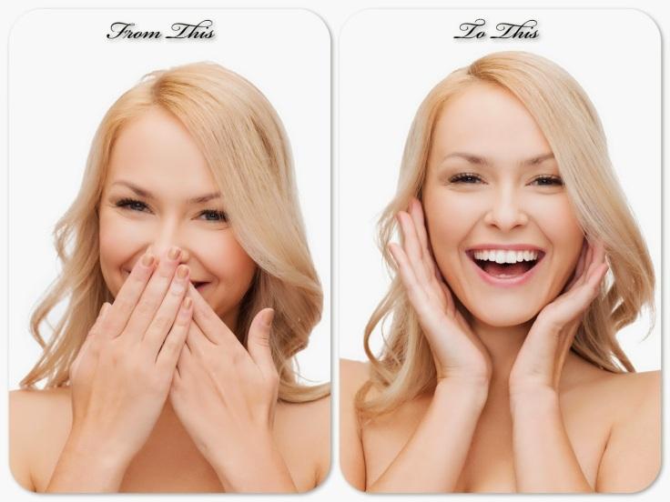 Brampton Dentists, Before and After Smile, teeth Whitening, Brampton Periodontist, Gum Specialist, Dental implant Specialist Brampton,