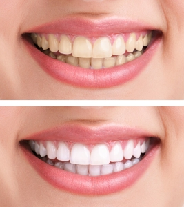 Teeth Whitening, Brampton Dentists, Dental Info, Dentists in Brampton, Great Smiles, Whitening Specials,
