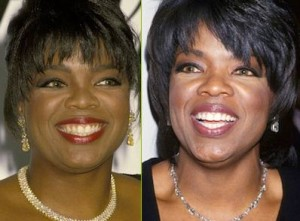 Oprah Winfrey, Invisible Braces, Dentists Brampton, Celebrities with Invisalign Braces,