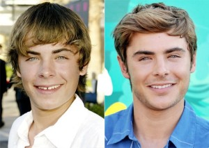 Braces Zac Efron, Invisible Braces Justin Bieber, Dentists Brampton, Celebrities with Invisalign Braces,