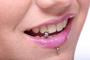 Tongue piercing, Oral Piercings, top dentist in brampton, brampton dental office, best dentist in brampton, tooth decay, tooth infection,