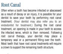 Root Canal Information, Common Dental Procedures, Replacing a Lost Tooth, Brampton Dentists, To Dentists in Brampton, Dental Facts, Dental Information,