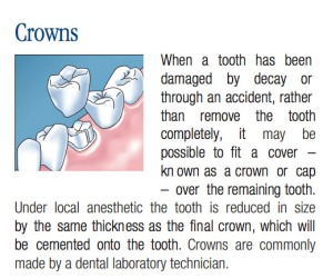 Dental Crown, Common Dental Procedures, Replacing a Lost Tooth, Brampton Dentists, To Dentists in Brampton, Dental Facts, Dental Information,