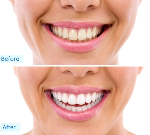 Brampton Dentists, Teeth Whitening, Top Dentist in Brampton, Dental Care, Dental info, Best Dentist in Brampton,