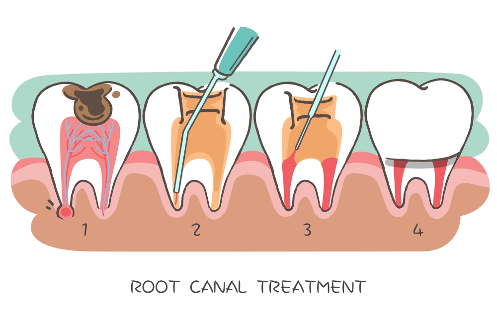 Brampton Dentists, Dental Offices in Brampton, Root Canal Brampton,